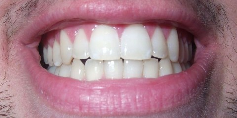 Teeth_800x400 wikimedia Theete