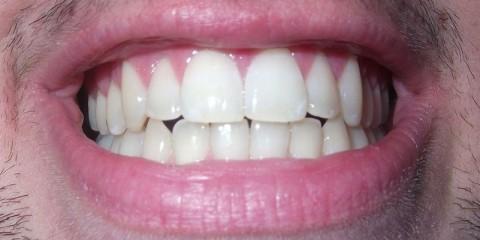 Teeth_800x400 wikimedia Theete
